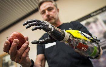 Guillermo Martinez đã tặng hàng trăm tay giả 3D cho người khuyết tật